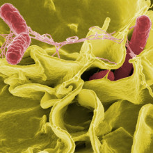 Pathogens Play A Part In Destroying Cells