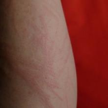Underlying Causes of Skin Disorders